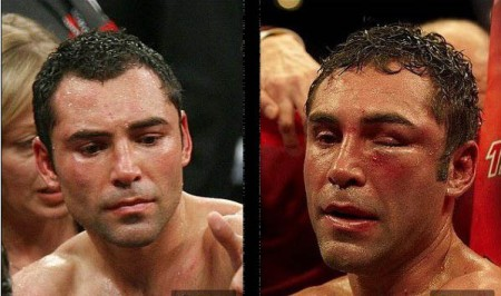 Oscar De La Hoya (L) looked better in a 12-round losse to Floyd Maywether, Jr. in a 12-round decision loss in 2007 than he did in an 8th round TKO loss to  Manny Pacquiao in 2008.